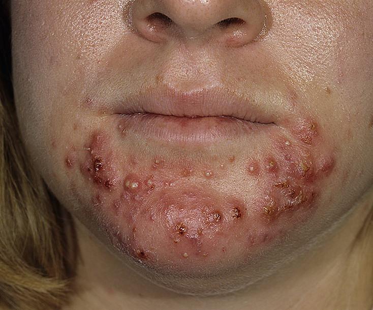 Препараты для выравнивания рельефа кожи лица thumbnail